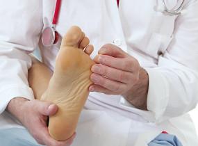 Mycoses des pieds - Symptômes
